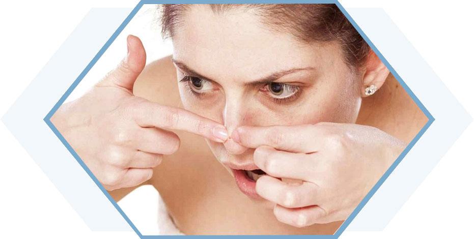 Học hỏi cách trị mụn đầu đen ở mũi triệt để từ các mẹ nội trợ