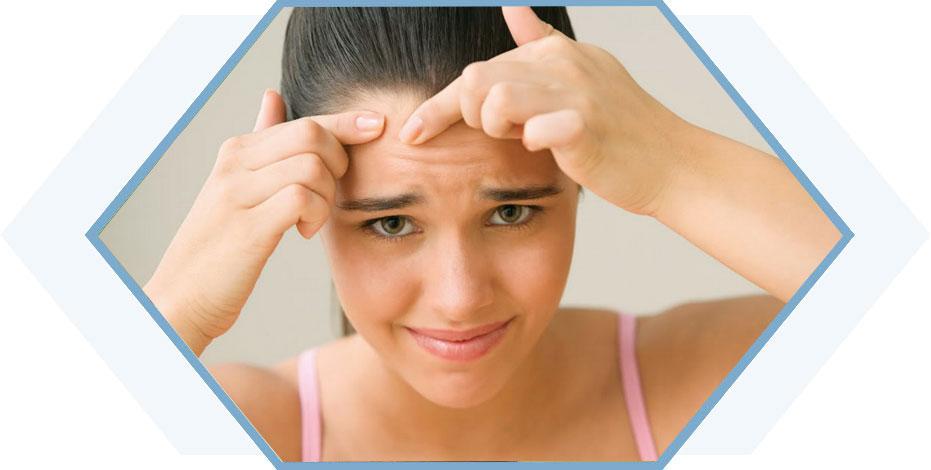 Phương pháp trị mụn ẩn trên trán nhanh và hiệu quả