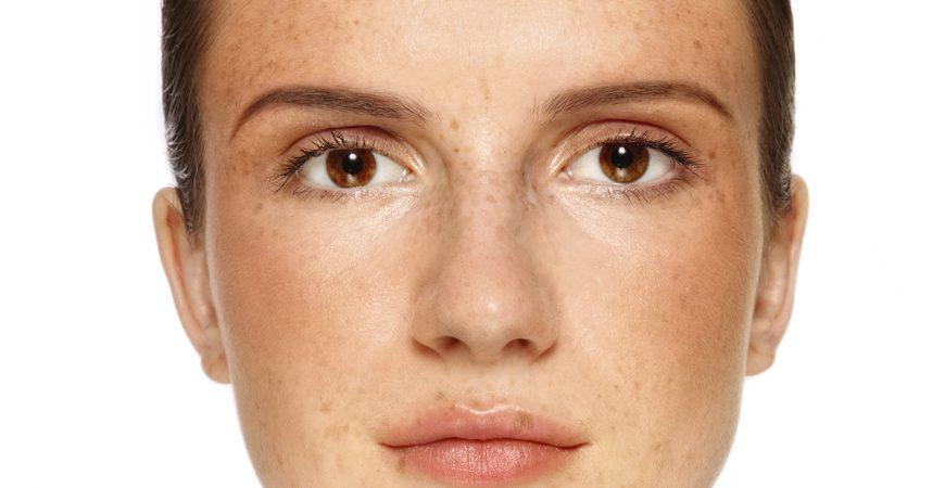 Note ngay cách xử lý da không đều màu từ nghệ cực hiệu quả!!!